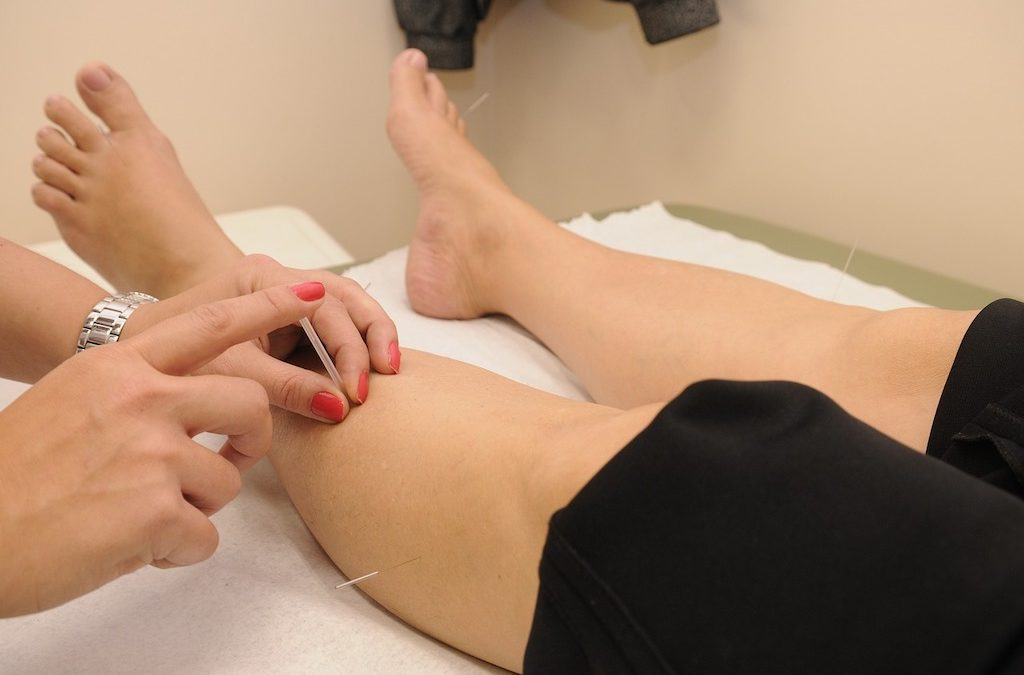 5 Reasons to Study at the American College of Acupuncture & Oriental Medicine